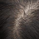 دکتر نوروزیان: چگونه به ضخیم شدن موها کمک کنیم